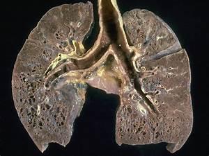Idiopathic Pulmonary Fibrosis Compound Gets Orphan Drug Status  Pneumonia Asbestos