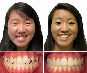 Braces Before and After - Children & Family Dentistry ...