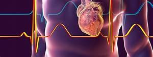 Heart Disease  Coronary Artery Disease  Quiz  Symptoms  U0026 Risk