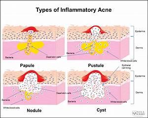 Cystic Acne Diagram