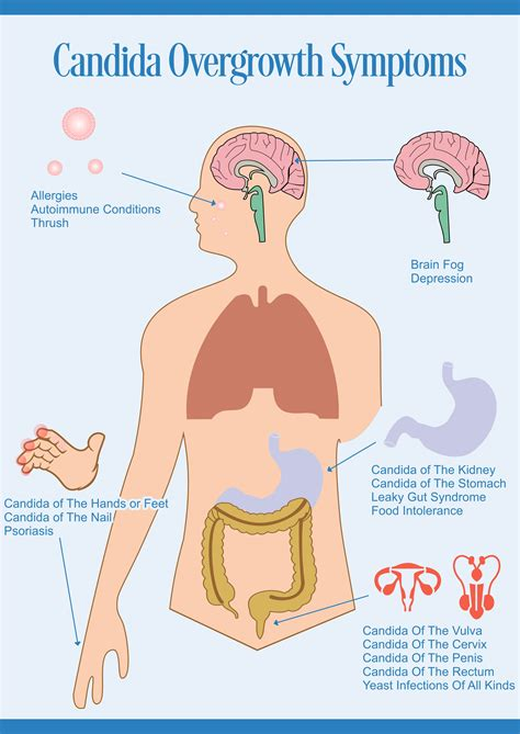 How To Recognize The Symptoms Of Stomach Ulcers 9 Steps