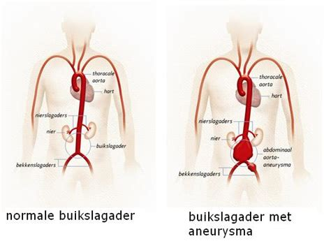 Bloed, bloeddruk en bloedvaten : wat is bloeddruk?