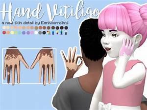 Simsworkshop: Hand Vitiligo by xEenhoornx • Sims 4 Downloads