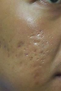 Pimple Com Sg  U2013 The Definitive Resource On Pimples
