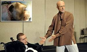 Surgeon Sergio Canavero claims to have carried out a HEAD ...