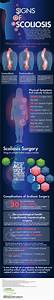 Levoscoliosis Symptoms