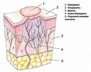 Как лечится вирус папилломы человека