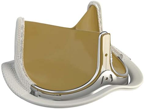 Edwards INSPIRIS RESILIA Aortic Valve Cleared in Europe ...