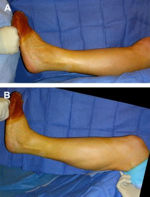 surgical correction  soft tissue ankle equinus