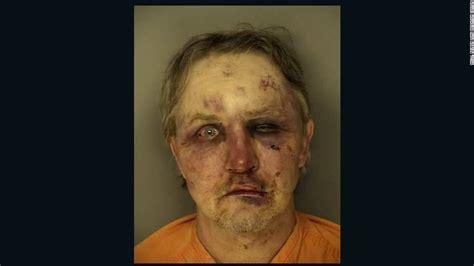man arrested  rough shape  alleged sexual assault cnn