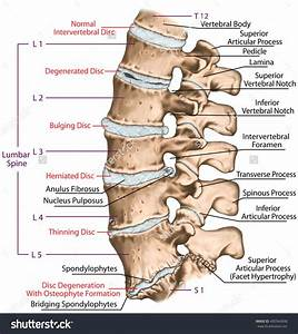 This Improper Alignment Causes The Facet Joints  U2013 The