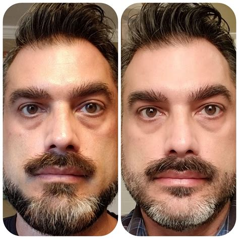 [B&A] NuFace after one month - Male, 48 : SkincareAddiction