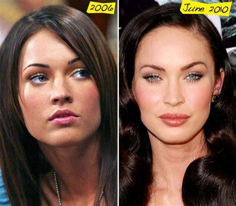 celebrity botox images  pinterest plastic