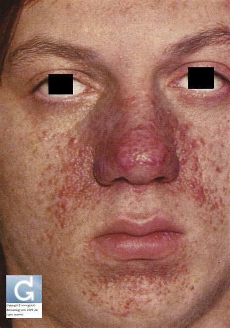 tuberous sclerosis tsc globale dermatologie