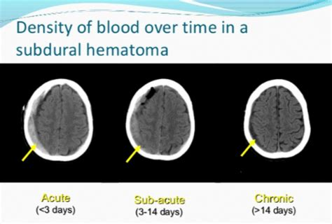 signs  chronic subdural hematoma recurrence scary symptoms