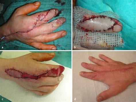 Der Schwere Weichteilschaden An Der Hand Springerlink