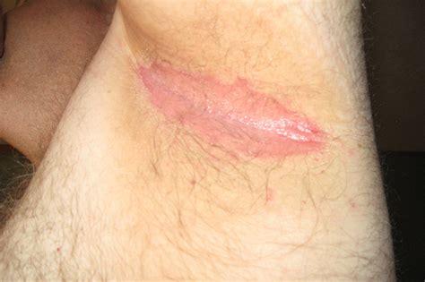 Redness In Armpit