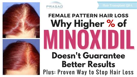 Hair Loss in Women - Why Stronger Minoxidil Doesn't Mean