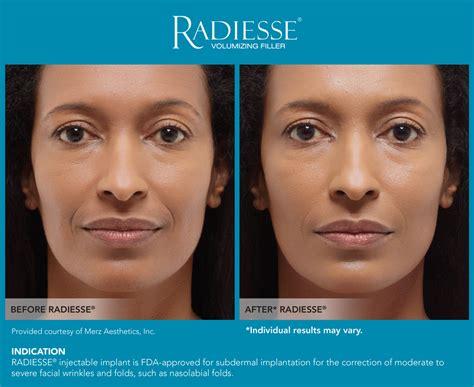 Radiesse Before-After - Serenity MedSpa