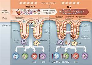 Microbiomarkers In Inflammatory Bowel Diseases  Caveats Come With Caviar