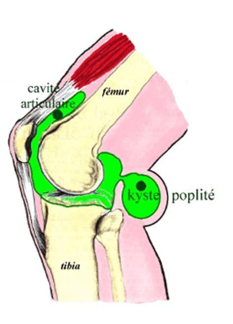 douleur al interieur du genou kyste poplit 233