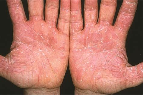 Under The Microscope Exfoliative Keratolysis Health