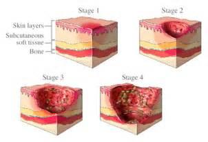 pressure ulcer bedsore decubitus ulcer pressure sore