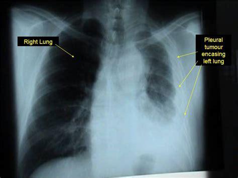 Cancer renal simptome