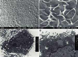 Ultrastructural Characteristics Of Mouse Intestinal