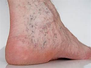 Spider Veins and Sclerotherapy