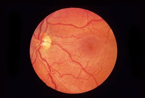 normal retina retina image bank