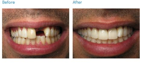 cosmetic dentistry dentist office los angeles south bay