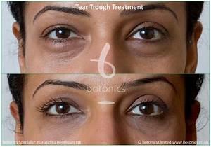 under eye hollows natural treatment