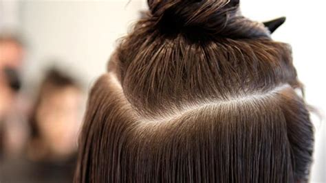 All You Need To Know About Scalp Fungus