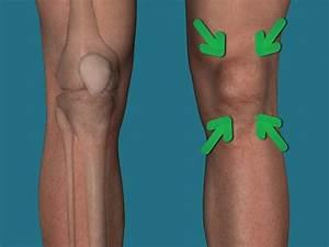Лекарственные препараты для лечения артроз коленного сустава