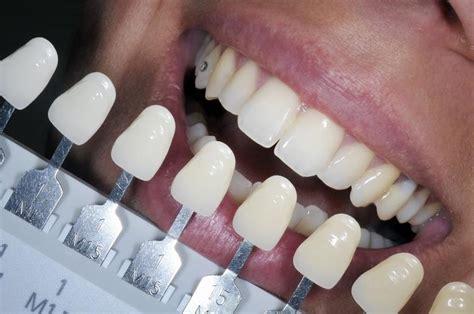 blanchiment des dents maison 28 images blanchiment des dents trendyyy blanchiment des dents