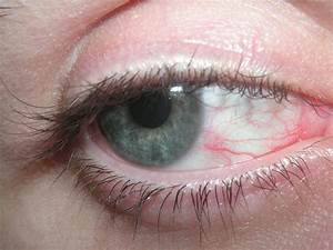 Deadly Ebola Virus Lurked And Grew In Eye Of  U0026 39 Cured