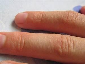 Мелкая сыпь при псориазе фото