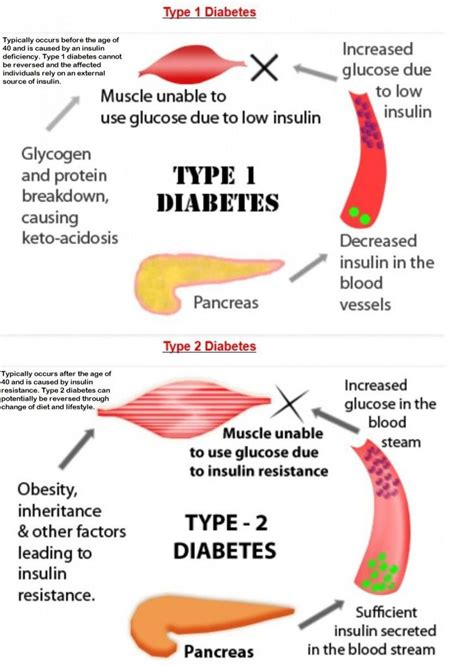 type  diabetes typically occurs   age