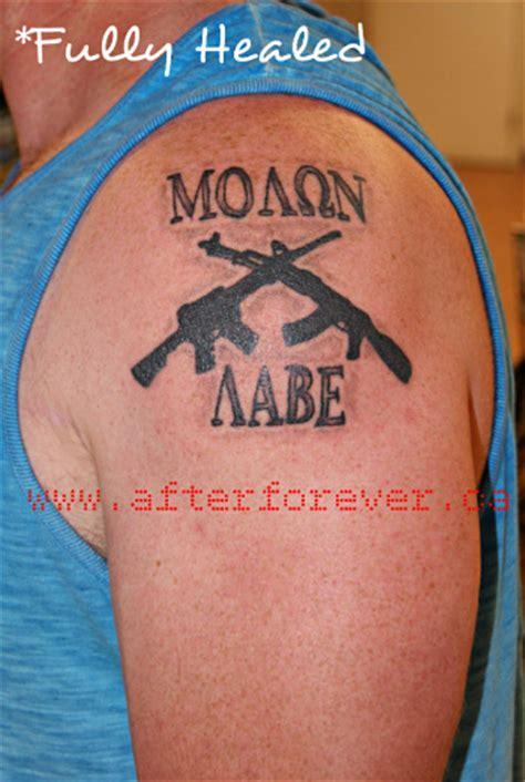 Shoulder Tattoo Healing