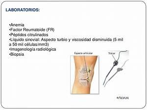 Metotrexato artritis reumatoide
