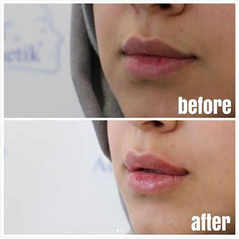 lippen aufspritzen lippen vergroessern  stuttgart dr
