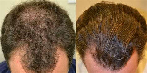 Propecia for Hair Loss - Dr Rogers, New Orleans, LA