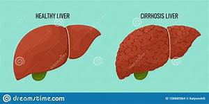 Healthy And Cirrhous Liver In Cartoon Flat Style  Vector