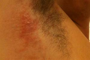 Red Patch Under Armpit images