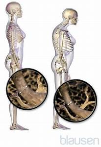 Osteoporosis - Bone  Joint  And Muscle Disorders