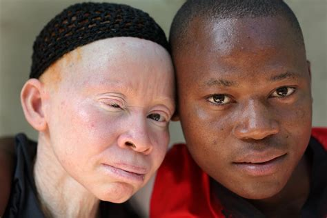 Being Black In A White Skin Students With Albinism Battle