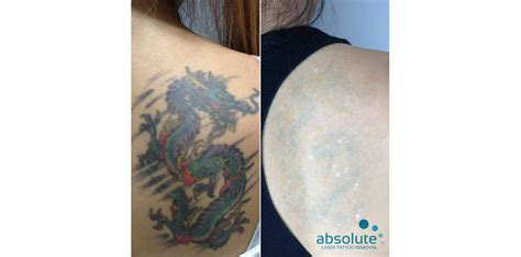 absolute laser tattoo removal picoway   results