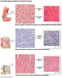 Dense Irregular Connective Tissue Labeled