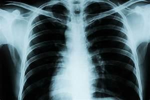 X-ray Suite - School Of Healthcare Sciences